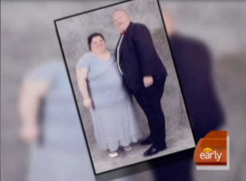 Married Couple Has Gastric Surgery Together