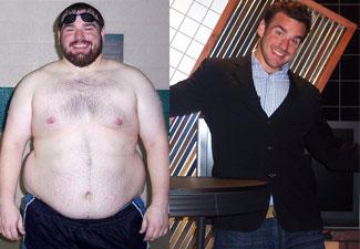 mount sinai weight loss surgery