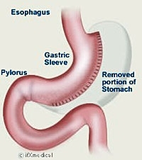 Endoluminal Incision-free Bariatric Surgery Debuts