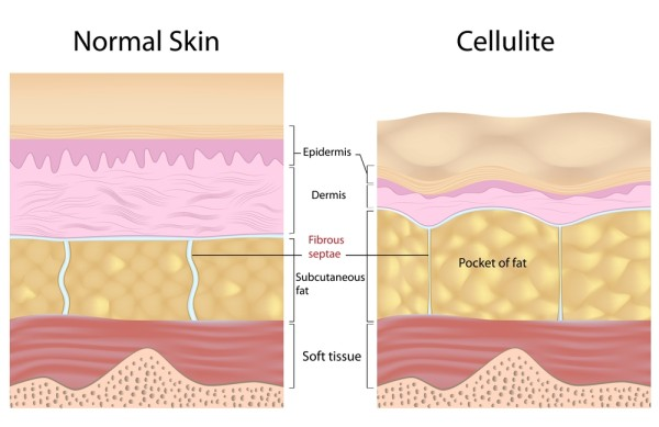 Struktura normalne kože i celulita