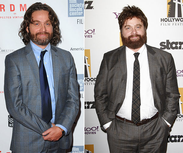zach galifinakis weight loss before after