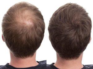 hair-fibers